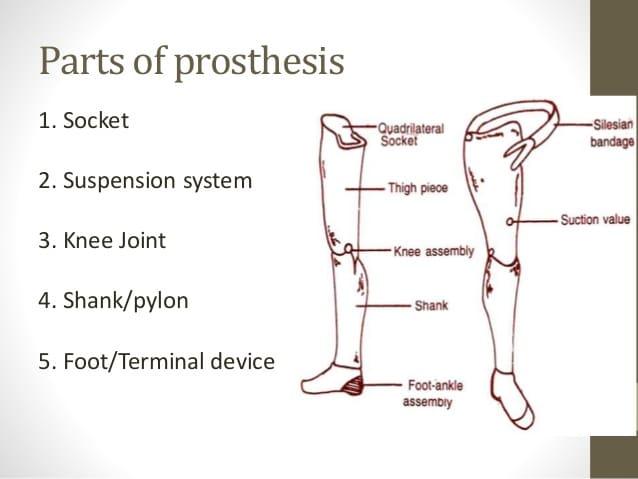 lower limbs prosthesis