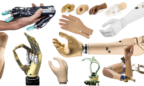 Upper Limb Orthoses products