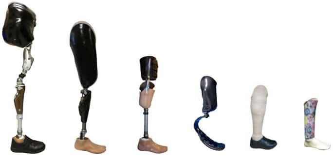 lower limb prosthesis mobility solution
