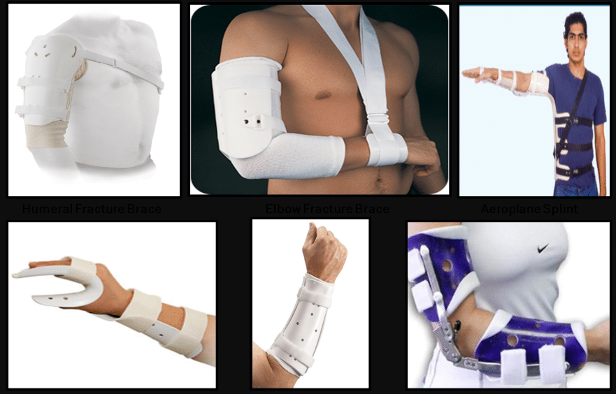 upper limb fracture braces