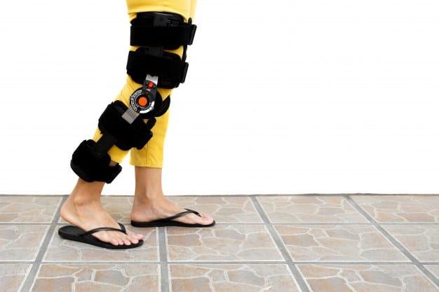 woman-leg-orthosis-standing
