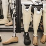 Artificial limb center Orthotic and prosthetic manufacturer's in India