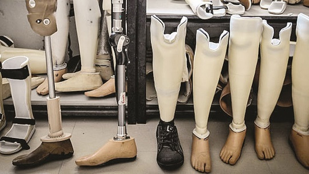 Orthotic and prosthetic manufacturer's in India