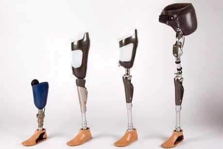 Artificial Limb Centre in Gurgaon!