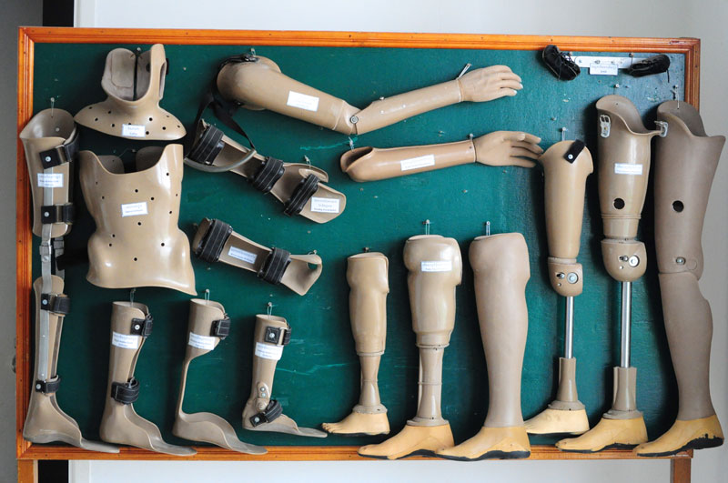 Orthotic and prosthetic footwear manufacturer's in India